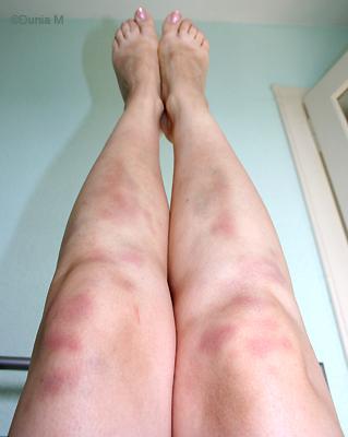 bleus jambes après sport